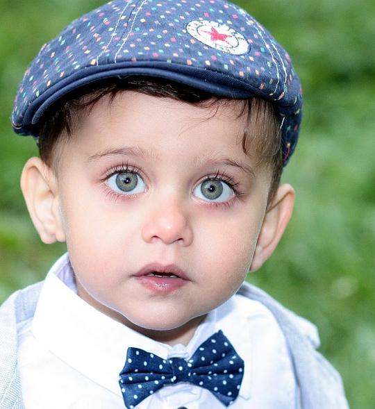 Untitled-2 Bonne nouvelle : Nico, l'enfant atteint de triplophtalmopathie, a été opéré et son troisième œil a été retiré