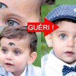 enfant-trois-yeux-3-handicap-grave-difforme-guerison-150x150 Roubaix : le petit Jonathan Quesquiet est né avec deux mois de retard