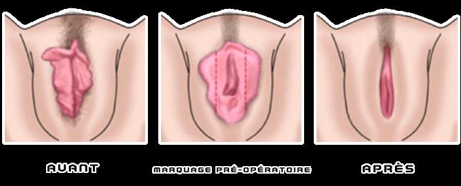 avant_apres_chirurgie_intime_nymphoplastie Pénélope Fillon diffuse sur Snapchat sa vaginoplastie payée avec de l'argent public