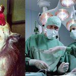 cerveau-singe-greffe-150x150 PMA : les dons de sperme bientôt déductibles fiscalement ?