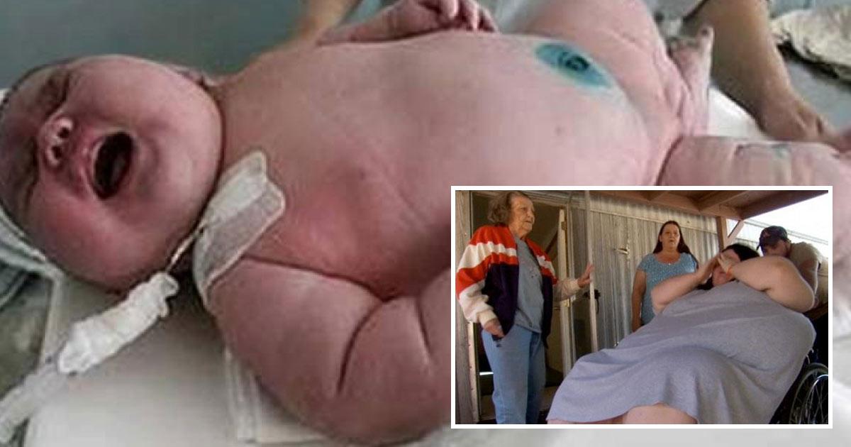 Australie: une femme de 270 kilos donne naissance à un bébé de 18 kilos