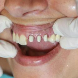 """Pour """"redonner le sourire aux français"""", les prothèses dentaires seront 100% remboursées par la sécu"""