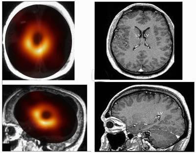 cerveau-trou-noir La science s'excuse : le trou noir n'était que le scanner cérébral de Nadine Morano